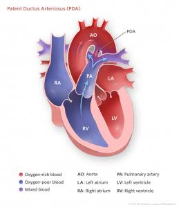 patent-ductus-arteriosus-illustration-773px